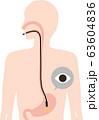 胃カメラ 検査 63604836