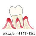 歯 重度歯周炎 63764501