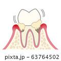 歯 中等度歯周炎 汚れあり 63764502
