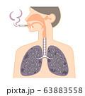 鼻・喉・肺の図表(喫煙者の黒くなった肺) 63883558