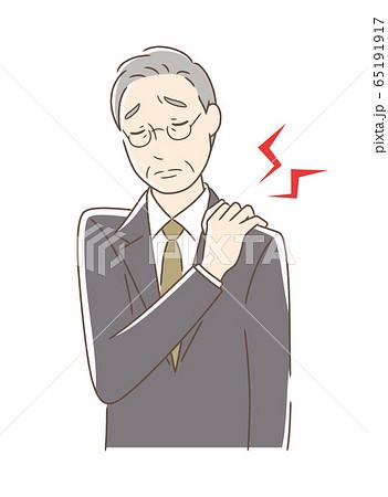 肩こりに悩む男性 65191917