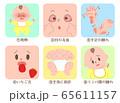 赤ちゃん 川崎病 症状 セット 65611157