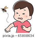 蜂に刺される男の子 65808634