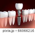 Row tooth white and dental implant 66066216