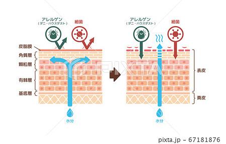 健康な皮膚とアトピー性皮膚炎 比較断面図イラスト 67181876