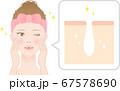きれいな毛穴 女性 断面図 67578690