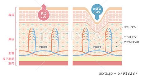 正常な肌としわのある肌を比較した肌の断面図、イラスト 67913237