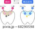 歯 脱灰と再石灰化 68290598