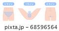 脱毛箇所 VIO デリケートゾーン 68596564