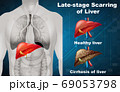 Late-stage scarring of liver 69053798