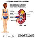 Medical infographic of kidney glomerulosclerosis 69053805