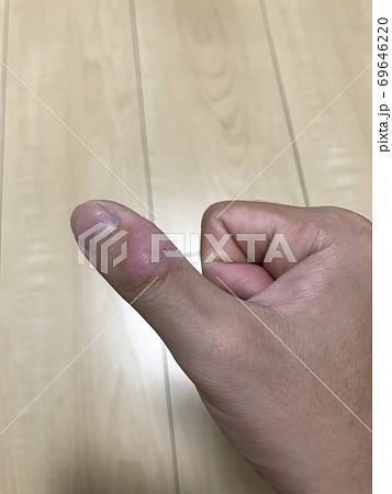 20代男性の親指の手荒れまたはペンだこ 69646220