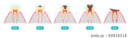 Tooth cross section_9 69818318
