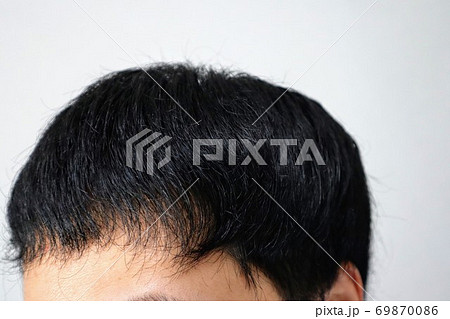 薄毛になってきた若い男性のクローズアップ 69870086
