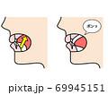 舌ポッピング 図解 69945151