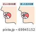 正しい舌の位置 誤った舌の位置 69945152