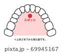 舌スポット 図解 69945167