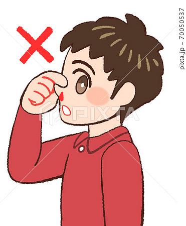 鼻血の時の間違った対応をやってみせる男の子のイラスト 70050537