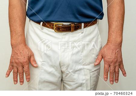 ゴルファー グローブを着けない右手の日焼けシミ 70460324