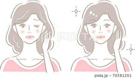 白髪 女性 ビフォアアフター 70581201
