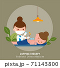 Cupping therapy illustration. Traditional chinese medicine. 71143800