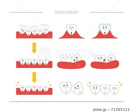 歯のベクターイラストセット 虫歯 歯科矯正 71395131