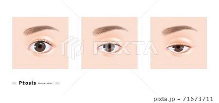 眼瞼下垂 両眼 女性 顔 目 眠たい まぶた 下垂 眼科 症例 イラスト 71673711