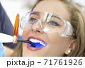 Dentist Using Ultraviolet Lamp 71761926