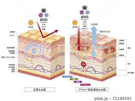 Cross section of the skin 3 72189391