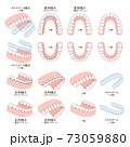 歯列矯正装置のイラスト 73059880