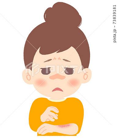 乾燥肌、肌トラブルで苦しんでいる女性 73839181