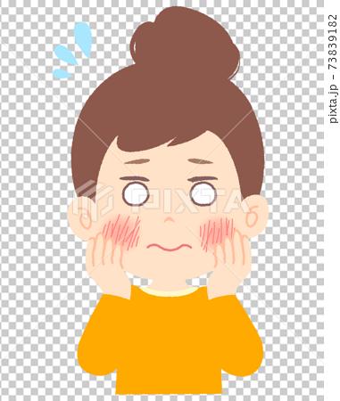 顔の肌荒れにお悩み中の女性 73839182