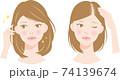 薄毛 女性 ビフォアアフター 74139674