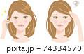 白髪の女性 ビフォアアフター 74334570