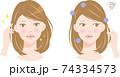 髪と頭皮の臭い 女性 ビフォアアフター 74334573