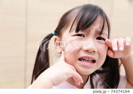 怪我をして絆創膏を顔に貼る女の子 74374194