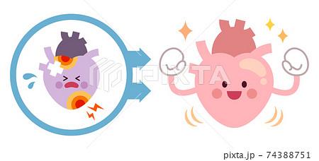 不健康な心臓から健康な心臓になるビフォーアフター 74388751