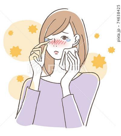 花粉症の女性 74638425