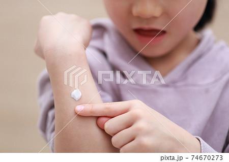 皮膚用薬の軟膏クリームを塗る幼児の女の子 74670273