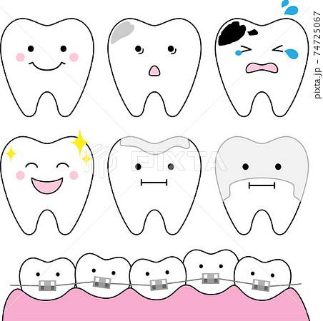 歯の状態のイメージイラスト 74725067