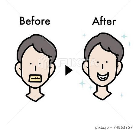 歯のホワイトニングのビフォーアフターイラスト 74963357