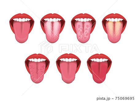 舌(べろ)が表す体の不調シグナル ベクターイラストセット (文字なし) 75069695