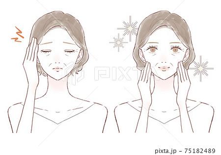 頭痛に悩まされる中年女性のビフォーアフター 75182489