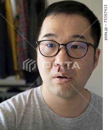鼻血が出た中年男性 75507415