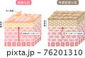 角質肥厚 健康な肌 断面図 立体 76201310