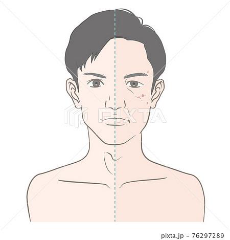 【20代-40代前半】男性の経年変化・ビフォーアフター 76297289