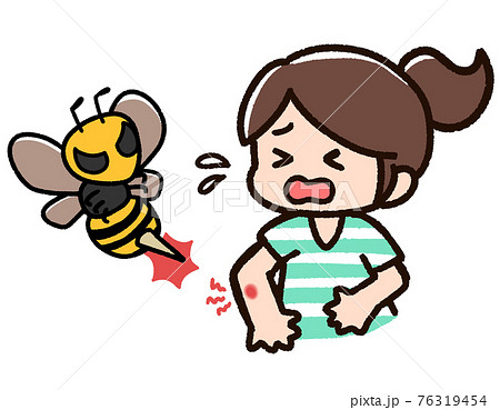 虫刺され 女性 蜂 76319454