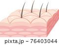 表皮の皮膚断面。肌のキメ、毛穴、汗腺、皮下組織。 76403044