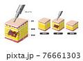 脂肪吸引(図) 76661303