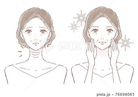 首のしわに悩む中年女性のビフォーアフター 76698065